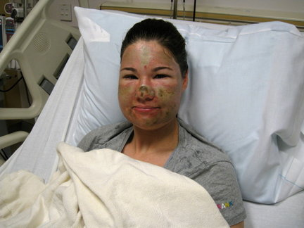 Bethany Storro photographed in her hospital bed after her alleged attack.